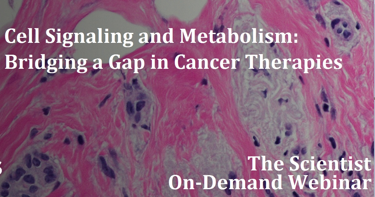 Cell Signaling and Metabolism: Bridging a Gap in Cancer Therapies