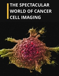 THE SPECTACULAR WORLD OF CANCER CELL IMAGING